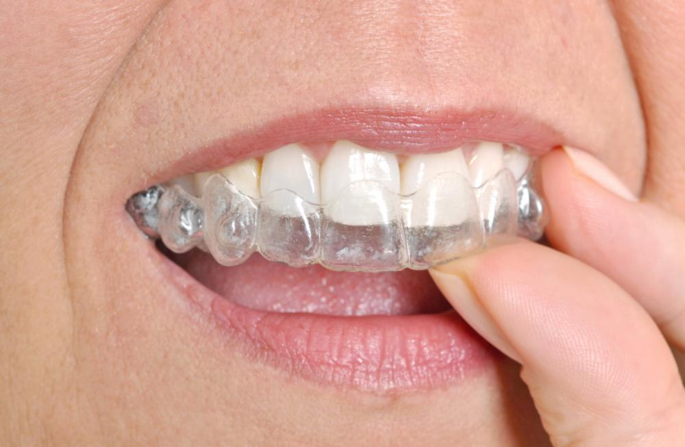 woman putting in invisalign clear aligner I cook family dental in birmingham AL