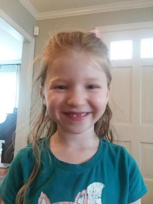 Child smiling with missing tooth at Cook Family and Cosmetic Dentistry