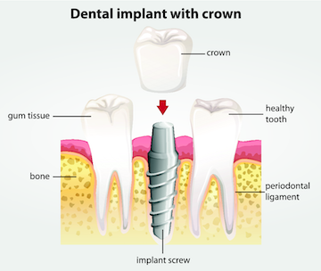 Dental Implants | Cook Family and Cosmetic Dentistry