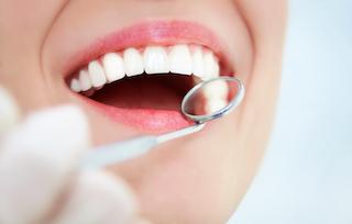 Tooth-Colored fillings | Cook Family and Cosmetic Dentistry