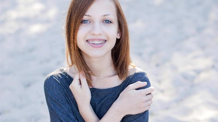 braces | teen girl | birmingham al dentist