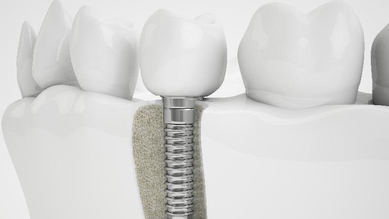 Dental Implant | Cook Family and Cosmetic Dentistry