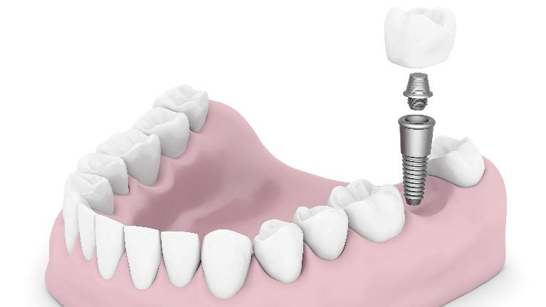 tooth implants birmingham al