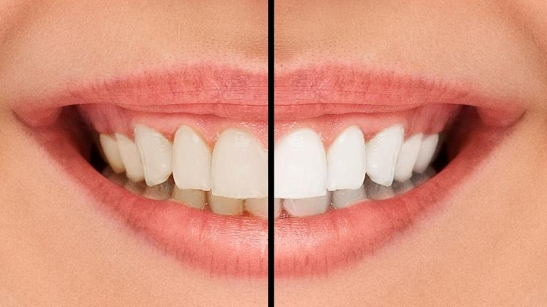 White Teeth | Cook Family and Cosmetic Dentistry