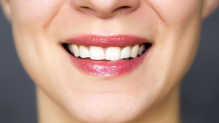 birmingham al dentist | teeth whitening birmingham