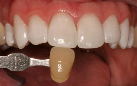 Teeth whitened 8 shade | Cook Family & Cosmetic Dentistry | Birmingham, AL
