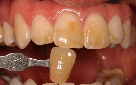 Stained yellowed teeth | Cook Family & Cosmetic Dentistry | Birmingham, AL