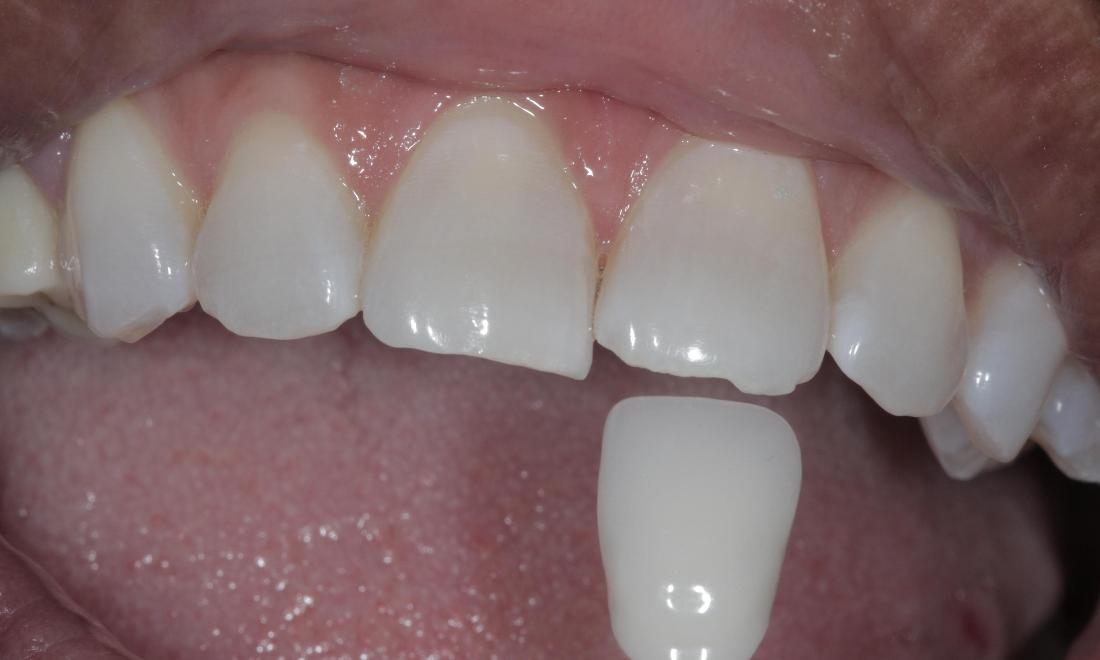 Kor Whitening after | Cook Family & Cosmetic Dentistry | Birmingham, AL