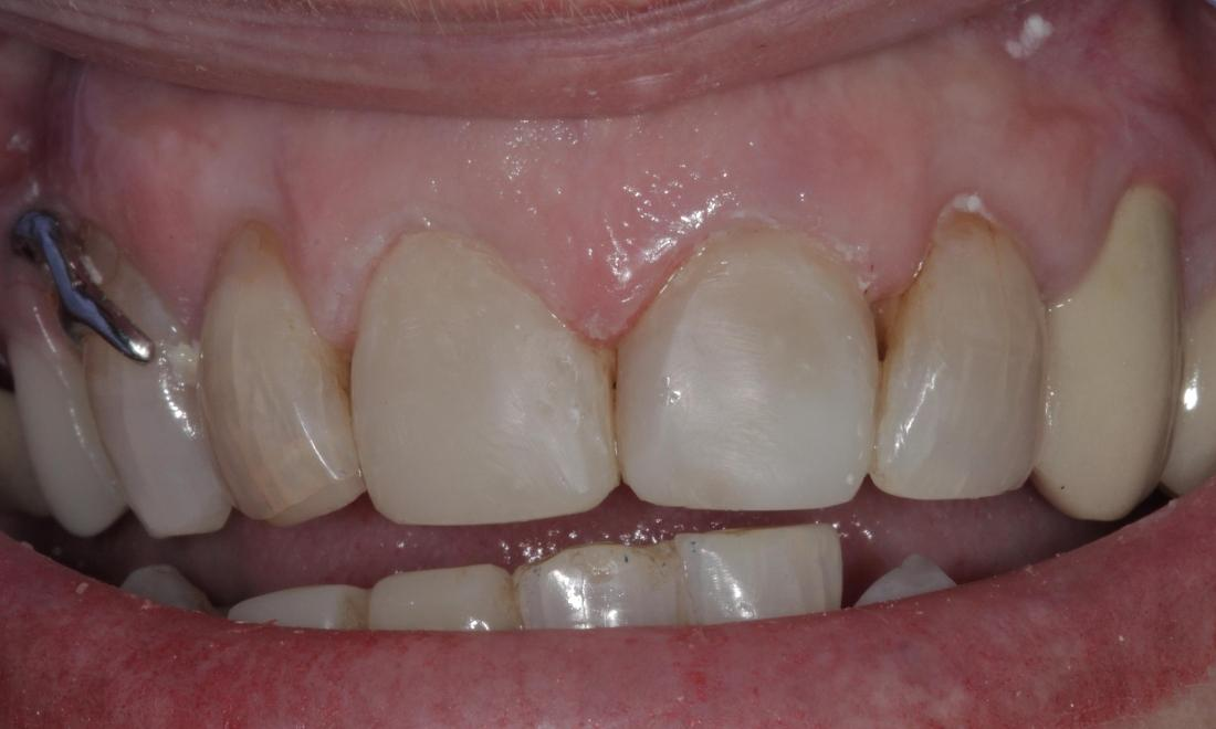 Whitened and repaired teeth with veneers | Cook Family & Cosmetic Dentistry | Birmingham, AL