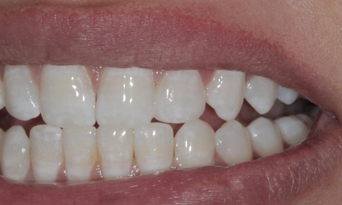 Cosmetic bonding to close gaps | Cook Family & Cosmetic Dentistry | Birmingham, AL