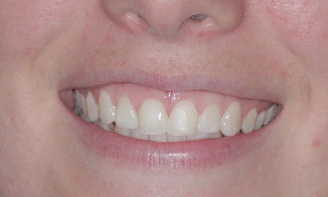 Dental Bonding Birmingham Al Dental Bonding Results