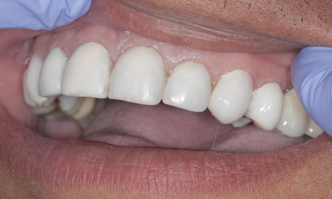 Cosmetic Bonding whitened teeth | Cook Family & Cosmetic Dentistry | Birmingham, AL