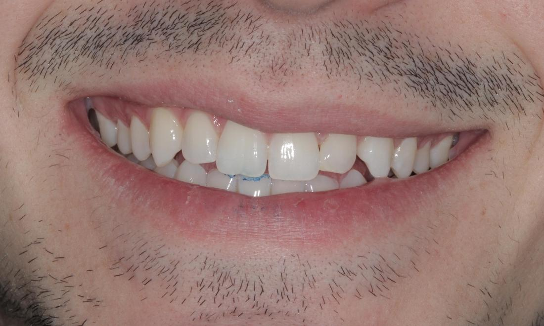 Clear Aligners closed this space in under 4 months!