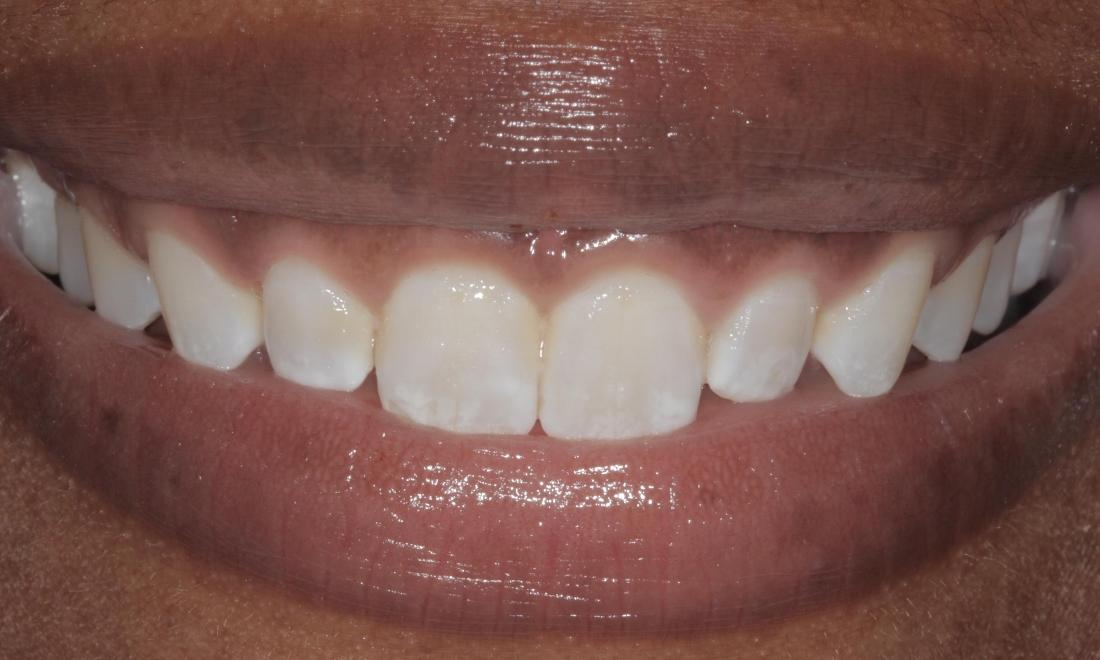 After cosmetic gum re-shaping | Cook Family & Cosmetic Dentistry | Birmingham, AL