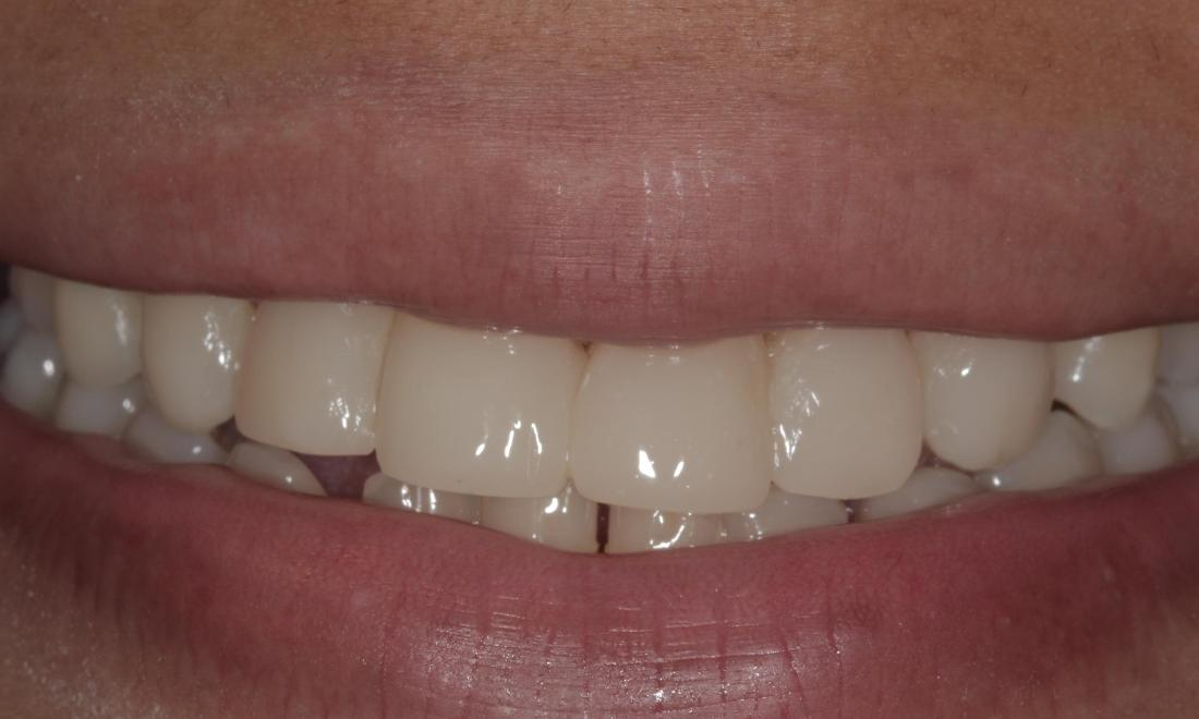 Cosmetic bonding closes gaps | Cook Family & Cosmetic Dentistry | Birmingham, AL