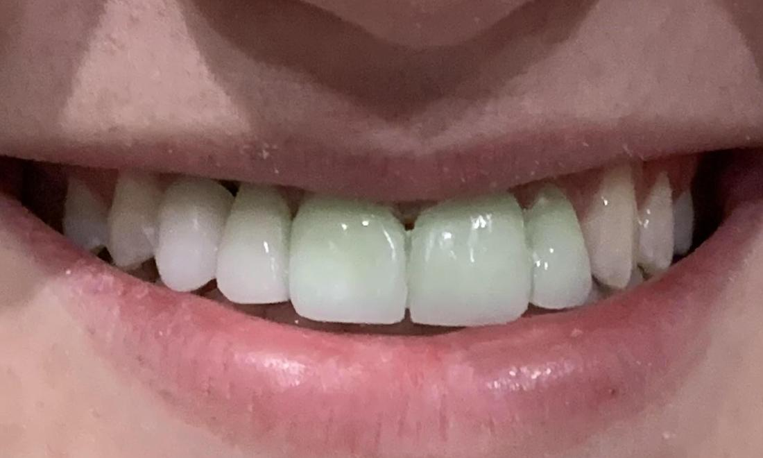 Cosmetic dentistry to improve a smile (Mid-way through treatment)!