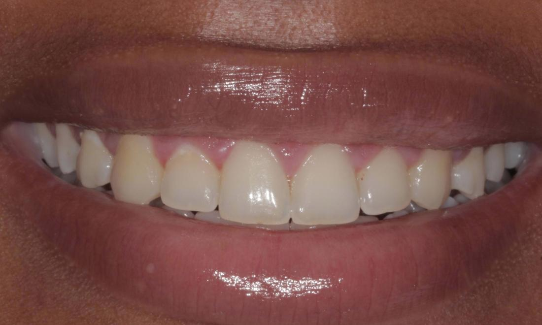 after gum re-shaping | Cook Family & Cosmetic Dentistry | Birmingham, AL