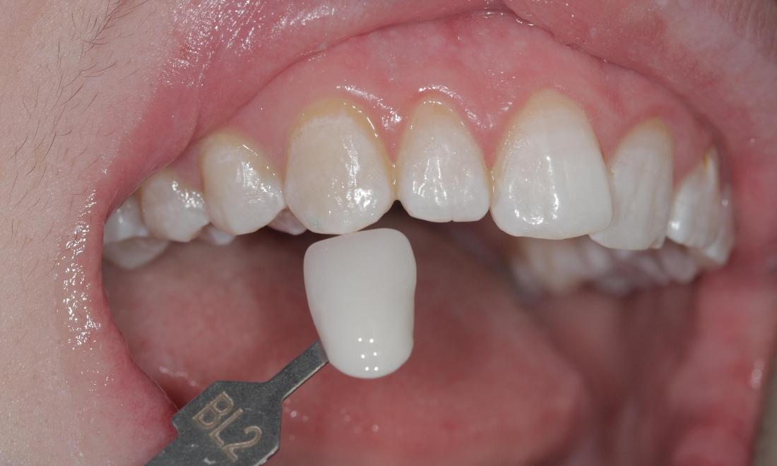 After Whitening | Cook Family & Cosmetic Dentistry | Birmingham, AL