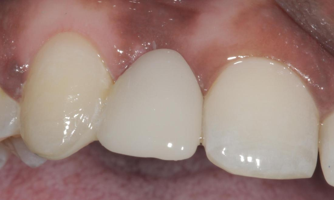 Maryland Bridge After | Cook Family & Cosmetic Dentistry | Birmingham, AL