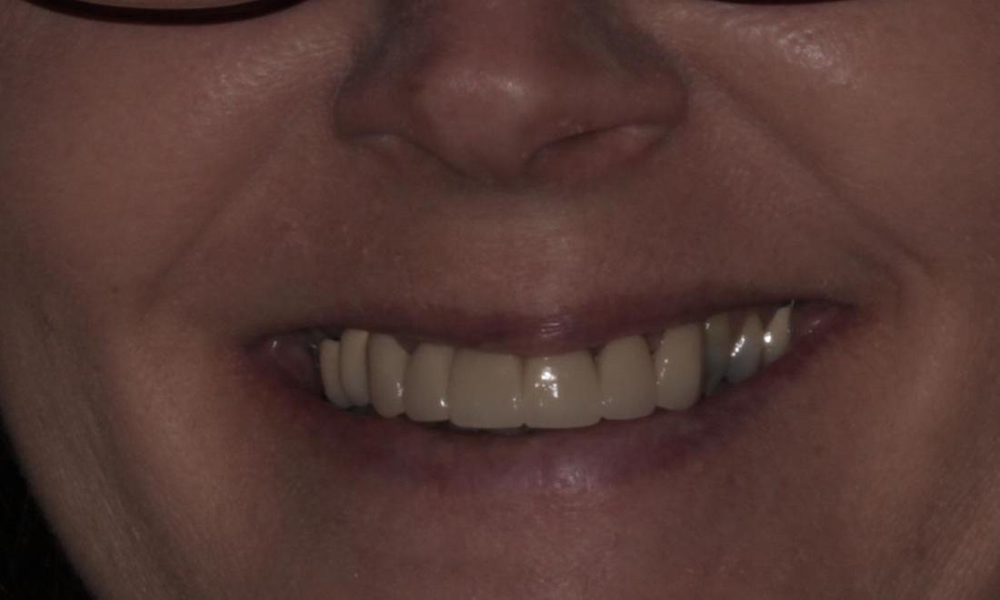 Porcelain Bridge After | Cook Family & Cosmetic Dentistry | Birmingham, AL