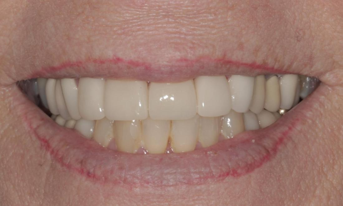 Porcelain Veneers after | Cook Family & Cosmetic Dentistry | Birmingham, AL