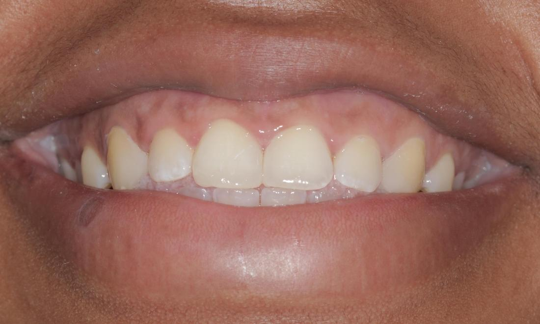 Space closed with cosmetic bonding | Cook Family & Cosmetic Dentistry | Birmingham, AL