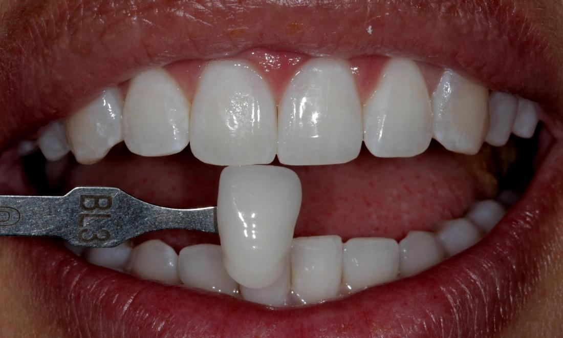after Zoom! Whitening | Cook Family & Cosmetic Dentistry | Birmingham, AL