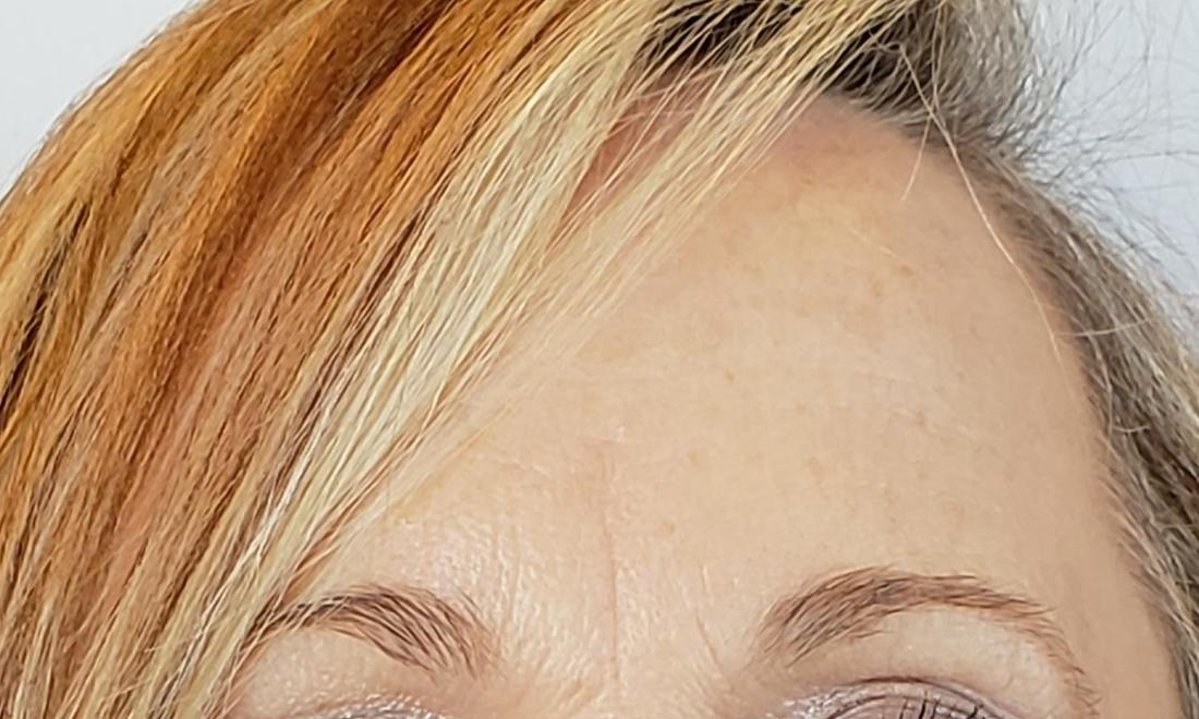 after xeomin and botox forehead wrinkles | Cook Family & Cosmetic Dentistry | Birmingham, AL