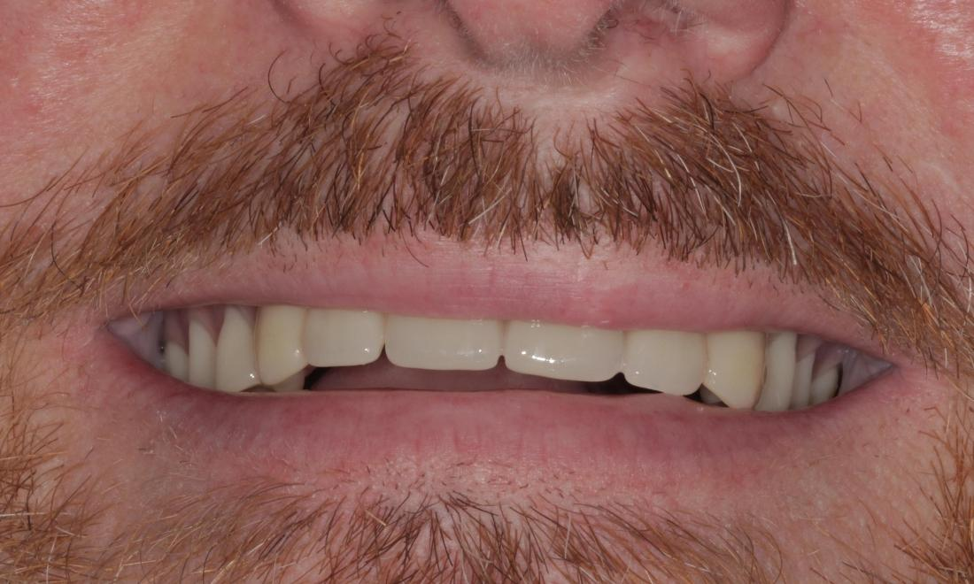 New, natural-looking upper denture