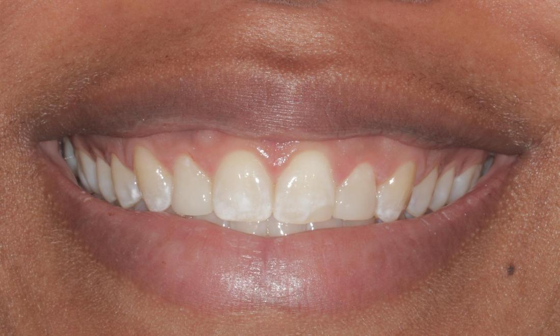 After cosmetic bonded veneers | Cook Family & Cosmetic Dentistry | Birmingham, AL