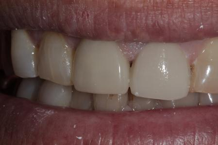 Repaired tooth wtih crown | Cook Family & Cosmetic Dentistry | Birmingham, AL