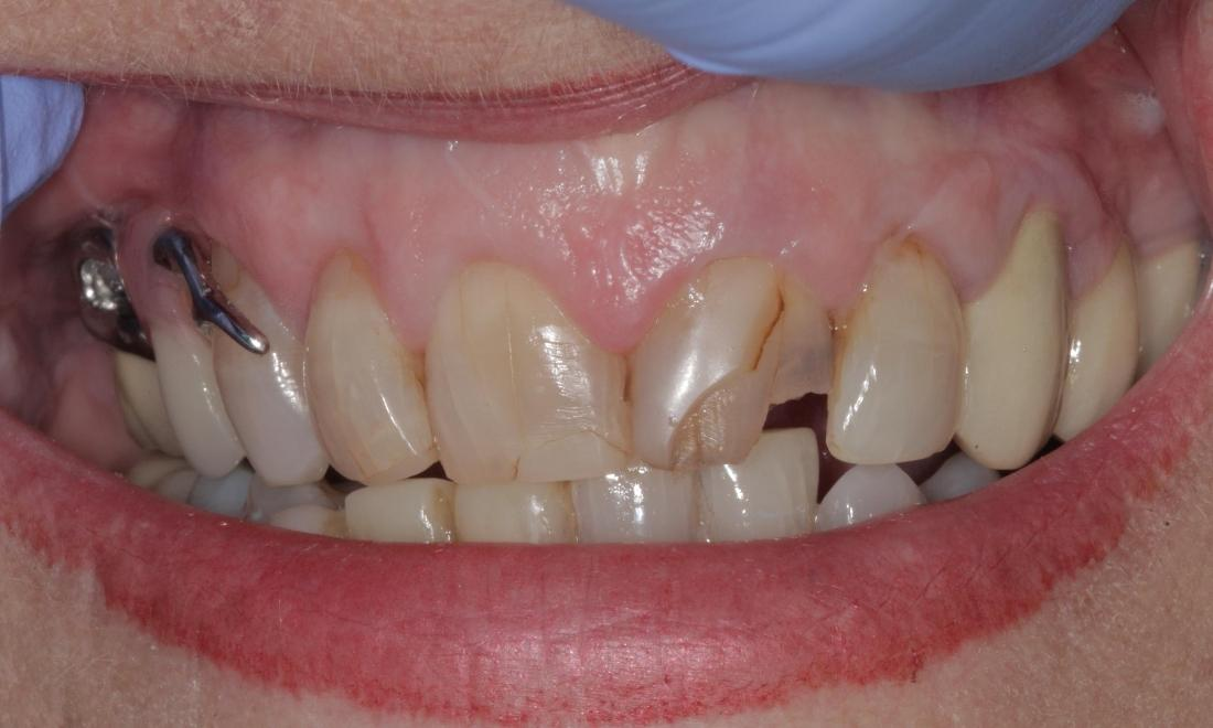 cracked and stained teeth before | Cook Family & Cosmetic Dentistry | Birmingham, AL