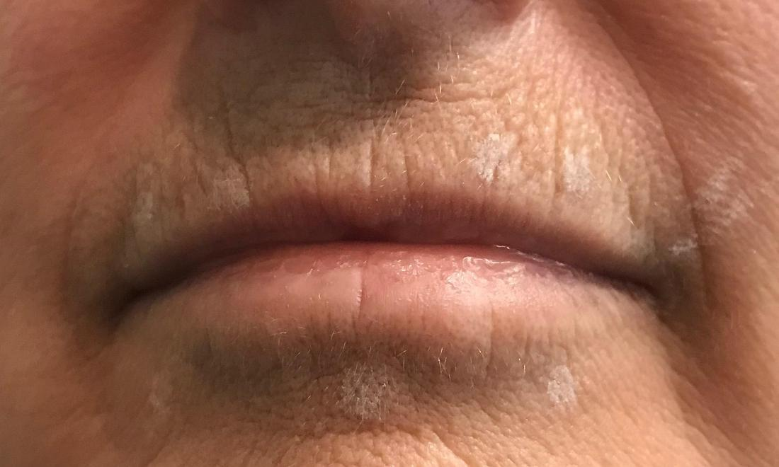 Before Juvederm, small lips | Cook Family & Cosmetic Dentistry | Birmingham, AL