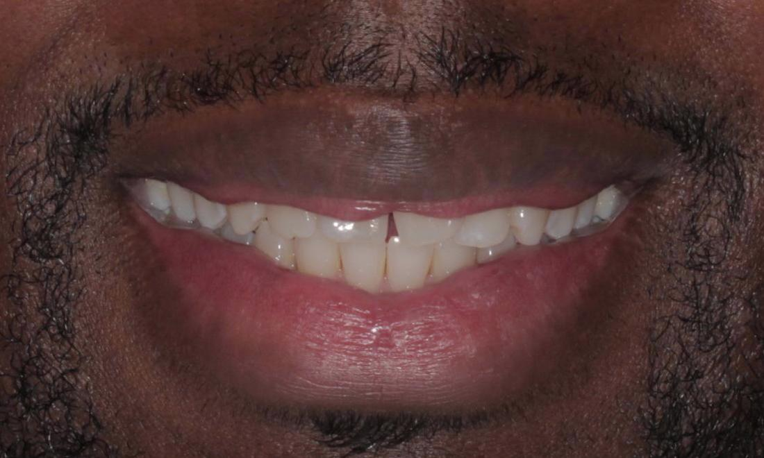 before ClearCorrect | Cook Family & Cosmetic Dentistry | Birmingham, AL