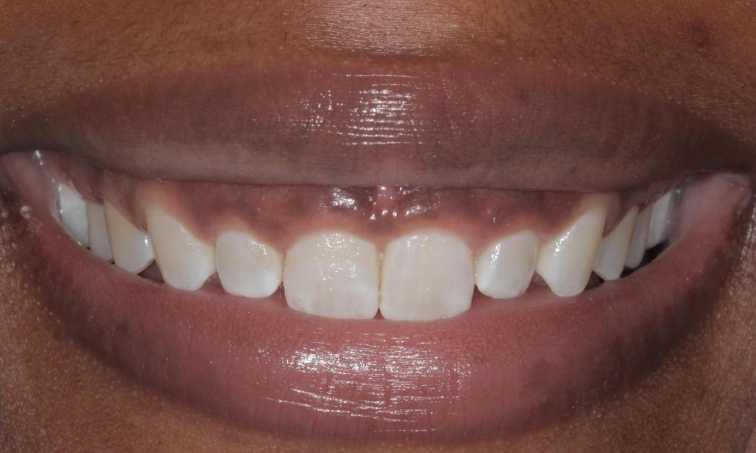 Cosmetic Gum Re-shaping before | Cook Family & Cosmetic Dentistry | Birmingham, AL