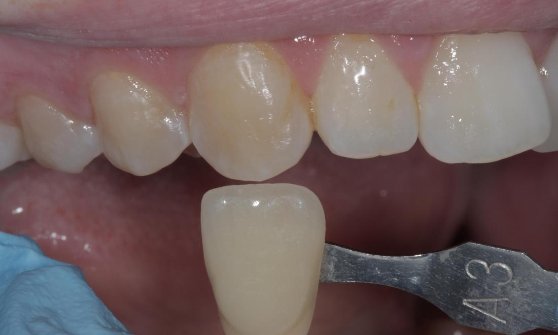 Stained, yellowed teeth | Cook Family & Cosmetic Dentistry | Birmingham, AL