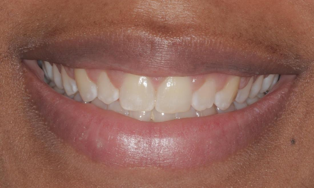 Before veneers | Cook Family & Cosmetic Dentistry | Birmingham, AL