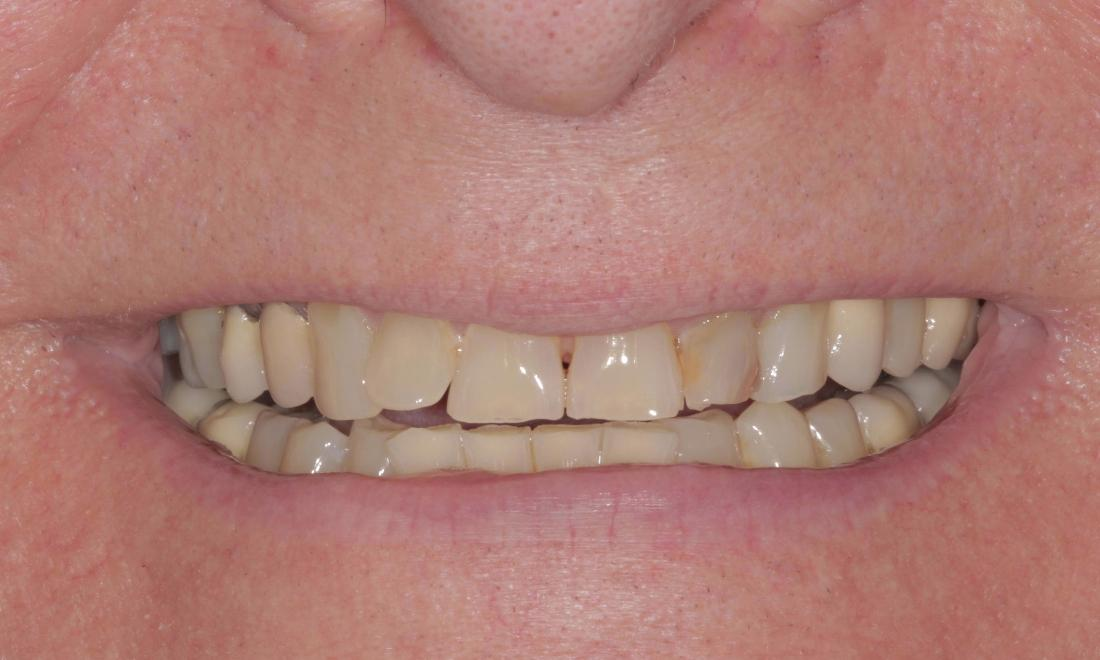 Before crowns and veneers | Cook Family & Cosmetic Dentistry | Birmingham, AL