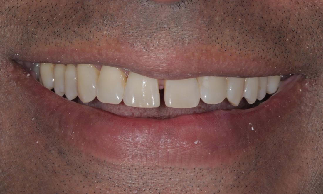tooth gap before | Cook Family & Cosmetic Dentistry | Birmingham, AL