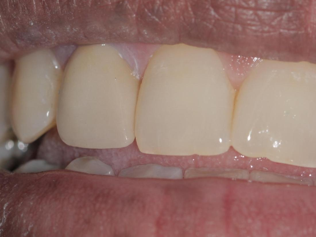 Replaced porcelain crown | Cook Family & Cosmetic Dentistry | Birmingham, AL