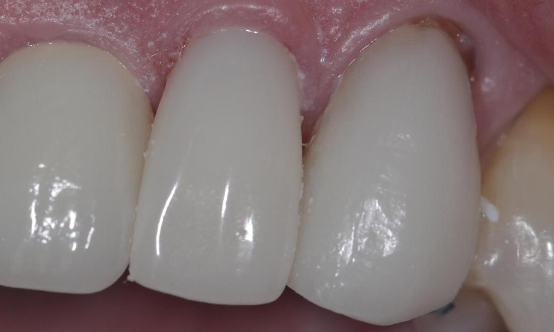 Repaired broken crown | Cook Family & Cosmetic Dentistry | Birmingham, AL