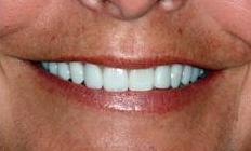Whitened, brightened teeth | Cook Family & Cosmetic Dentistry | Birmingham, AL