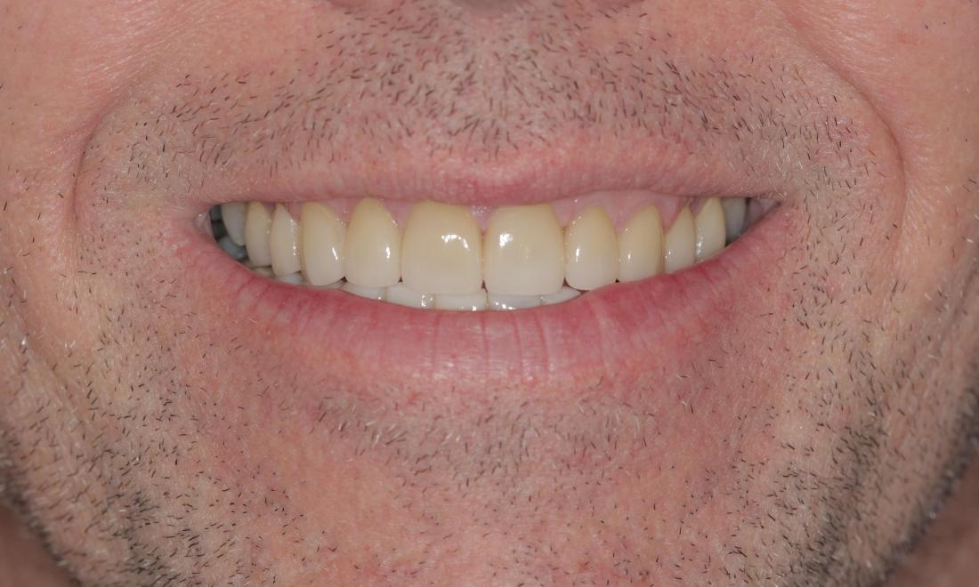 After crowns and veneers | Cook Family & Cosmetic Dentistry | Birmingham, AL