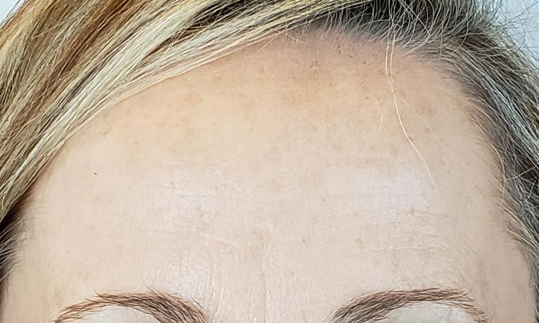 Another-Xeomin-Botox-case-After-Image