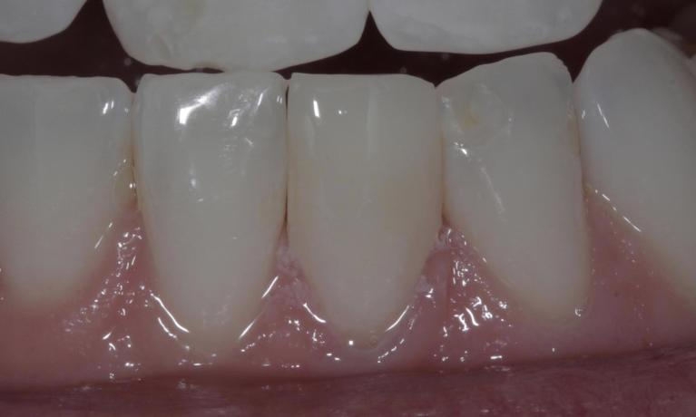 Bonding-to-repair-fractured-discolored-front-tooth-After-Image