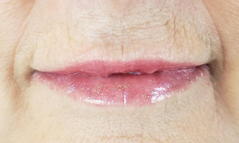 Xeomin-and-Juvederm-before-after-After-Image