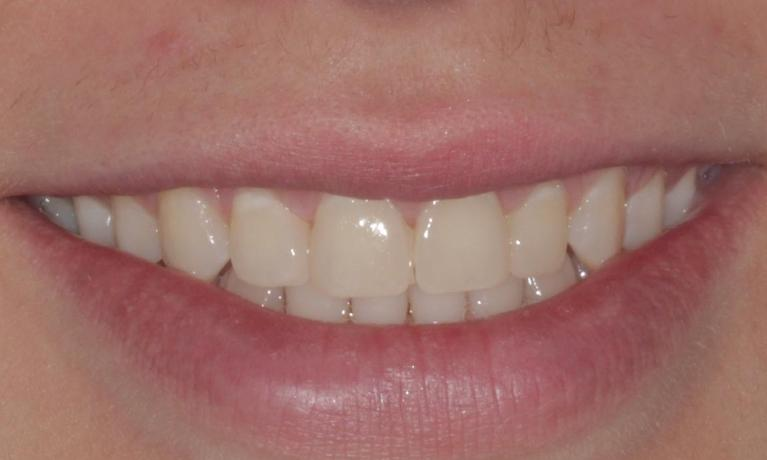 Clear-Correct-invisible-braces-and-cosmetic-bonding-After-Image