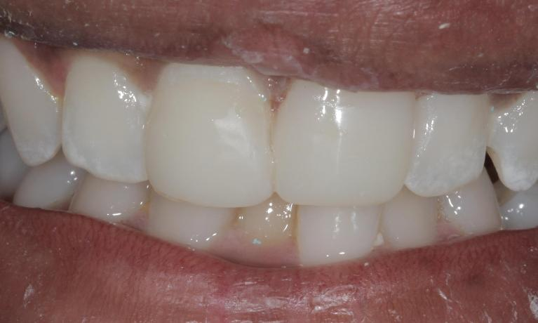 Cosmetic-bonded-veneer-After-Image