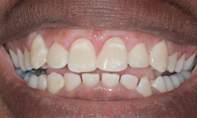 Gum-re-shaping-reveals-beautiful-smile-After-Image