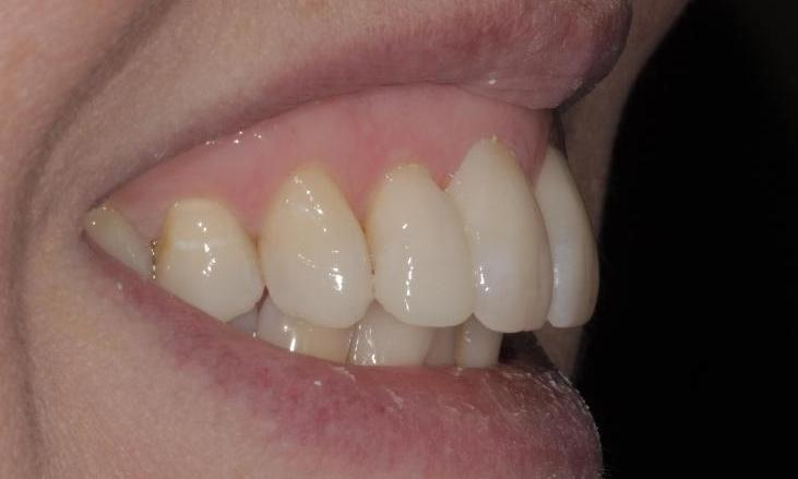 Inman-Aligner-and-cosmetic-bonding-After-Image
